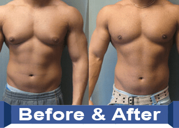 crazybulk Gynectrol before and after